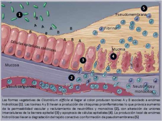 Patogenia de la infección porClostridium difficile