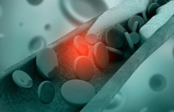 El Colesterol y las Enfermedades Cardíacas