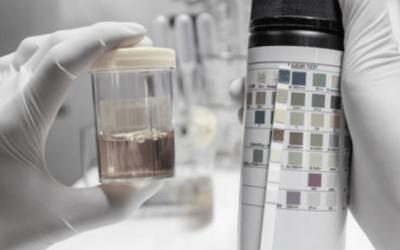 Uroanálisis: la mejor alianza del diagnóstico médico
