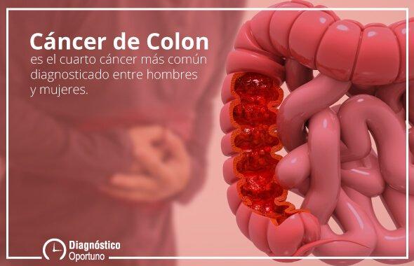 El Cáncer de Colon es el cuarto cáncer más común diagnosticado entre hombres y mujeres en México.