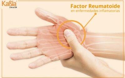 Papel del Factor Reumatoide en Enfermedades Inflamatorias