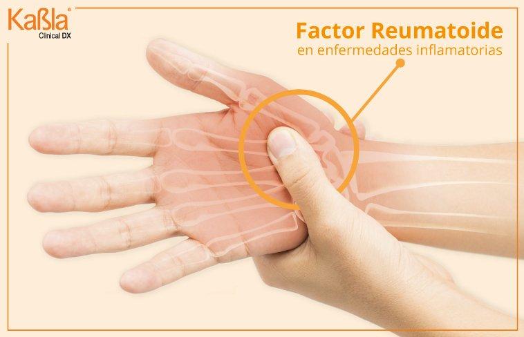 Factores-Reumatoides